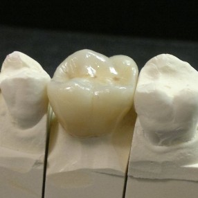 Affordable crowns in Melbourne eastern suburbs